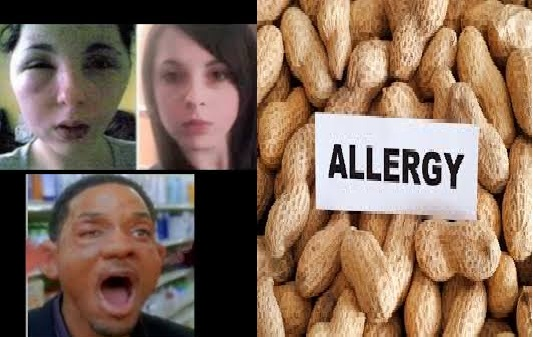 Symptoms and Diagnosis of a Nut Allergy