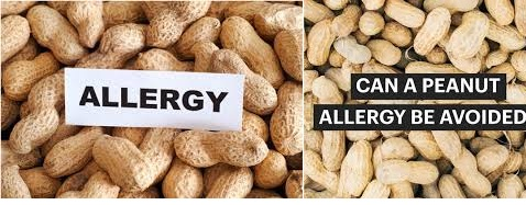 Avoiding Peanuts And Tree Nuts For Those With Allergies