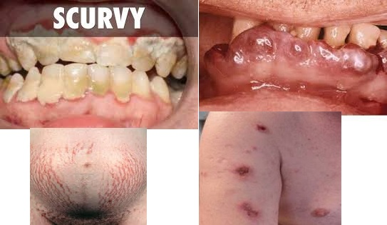 Scurvy: Causes, Symptoms, Risk Factors and Early Warning Signs